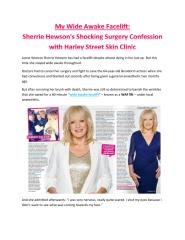 My Wide Awake Facelift - Sherrie Hewson's Shocking Surgery Confession with Harley Street Skin Clinic.pdf