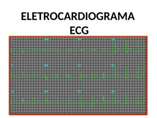 ECG.ppt